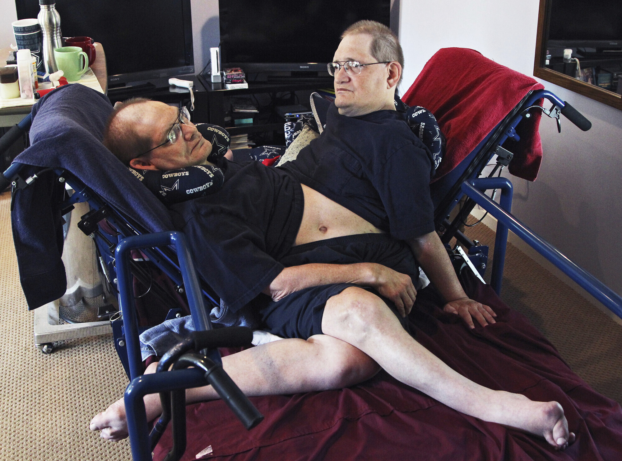 Oldest Conjoined Twins Die
