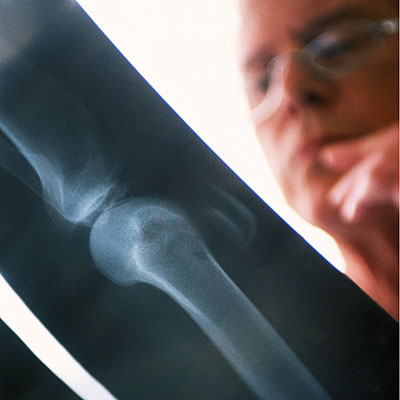 possible-broken-bone