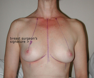 breast-surgeon-signature