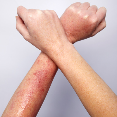 heat-rash-arm