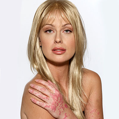 caridee-psoriasis-before