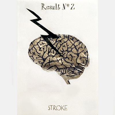 Result No. 2: Stroke