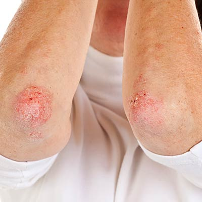 If you have eczema or psoriasis