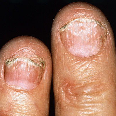 Fingernail and toenail pitting