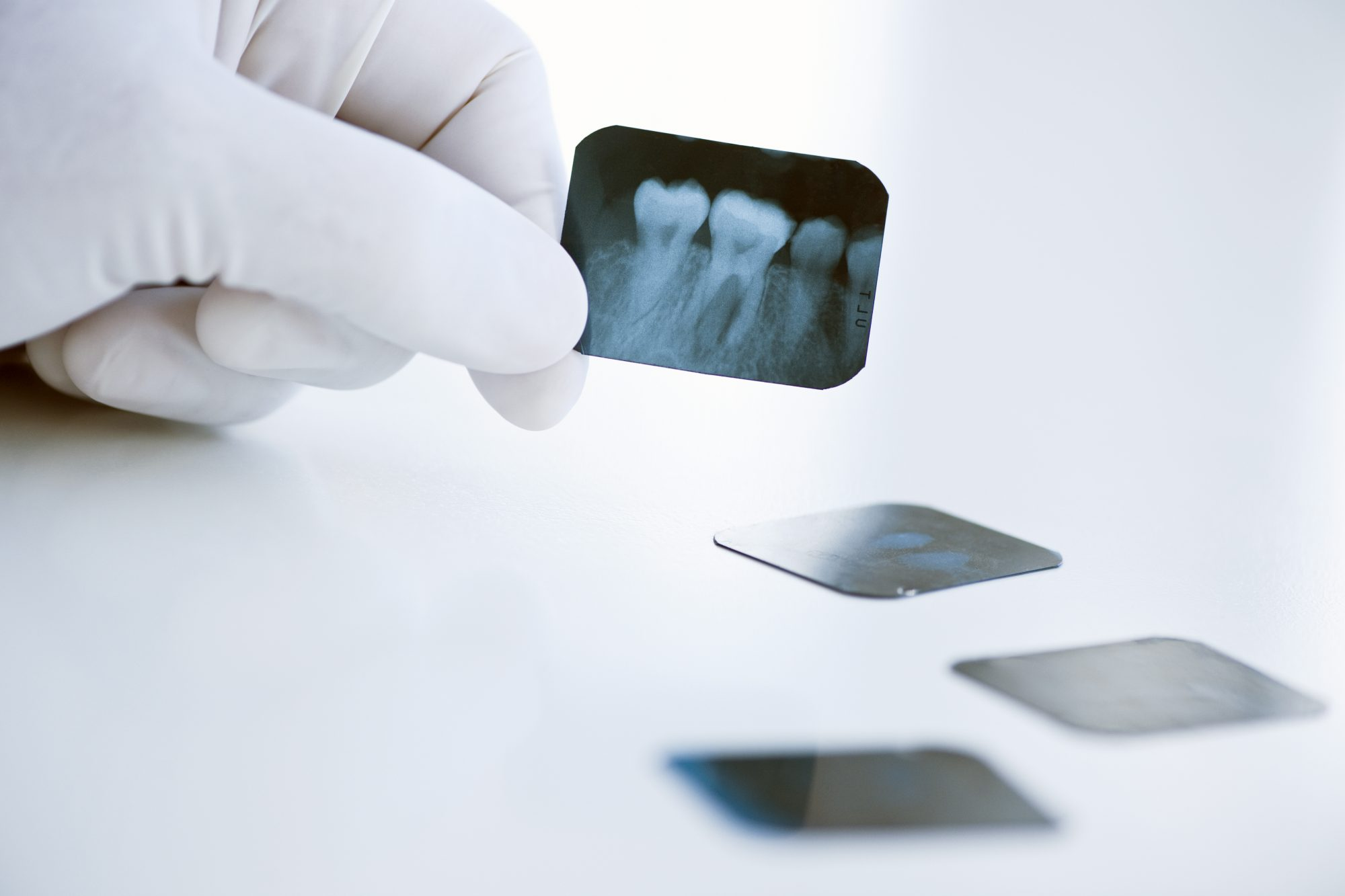 Avoiding x-rays teeth mistakes
