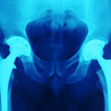 double-hip-replacement