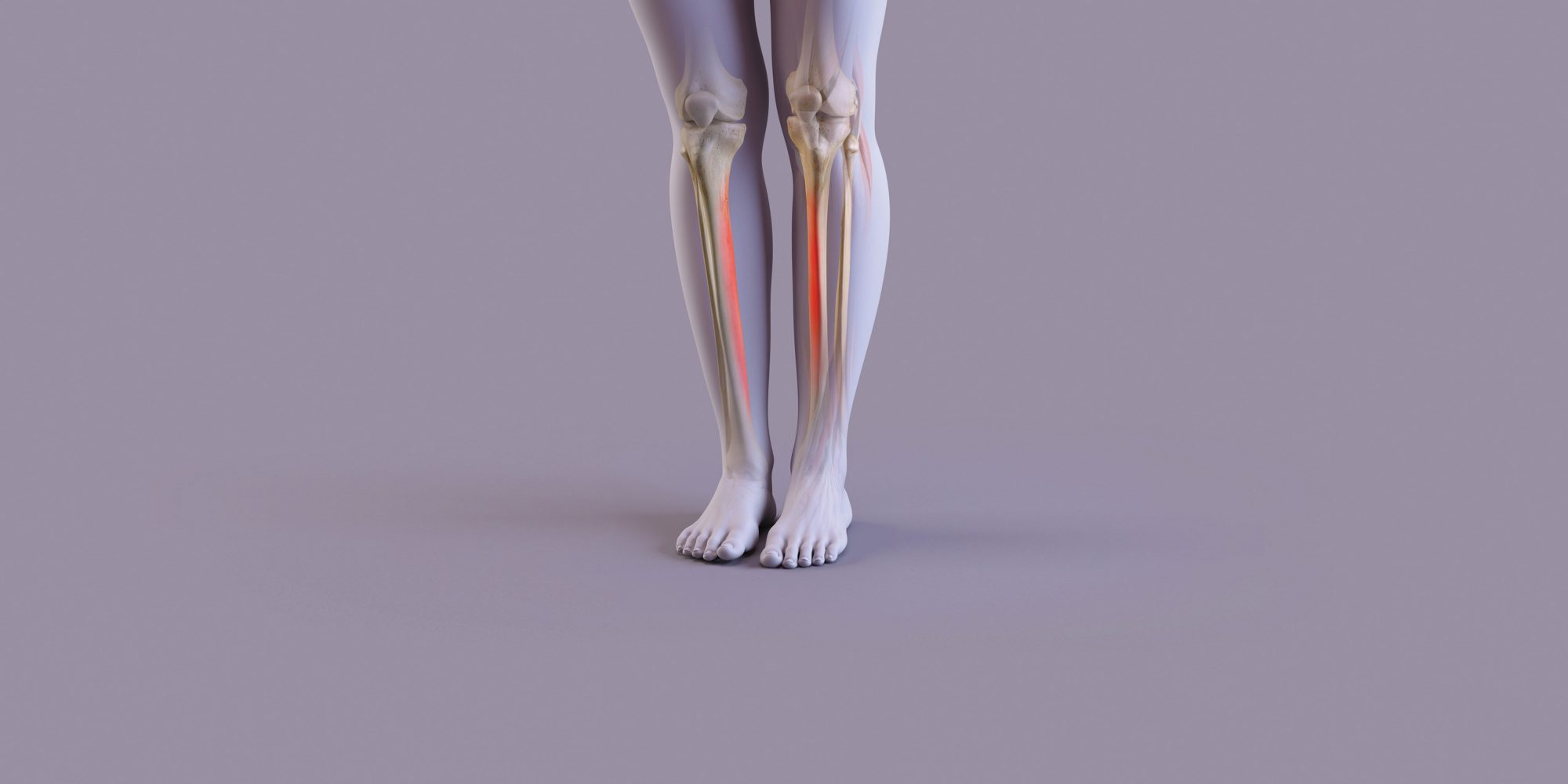 Why shin splints hurt so much