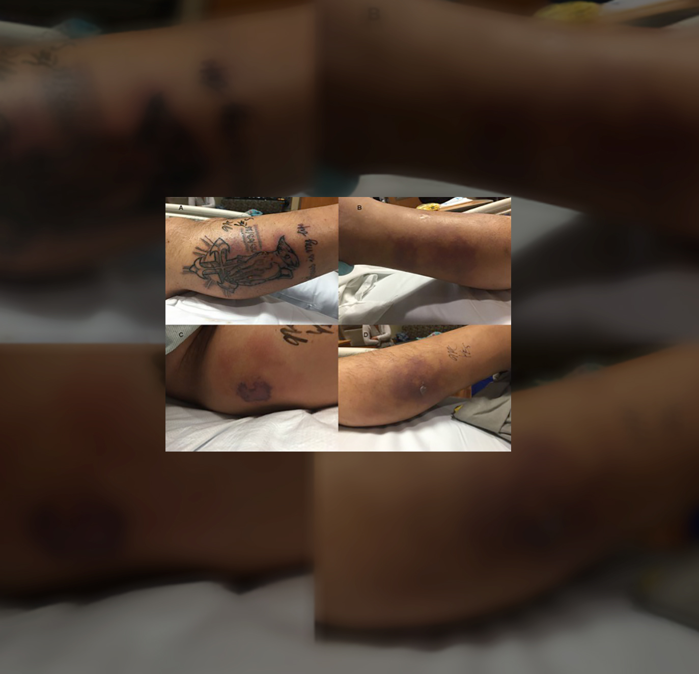 tattoo-infected-man-died