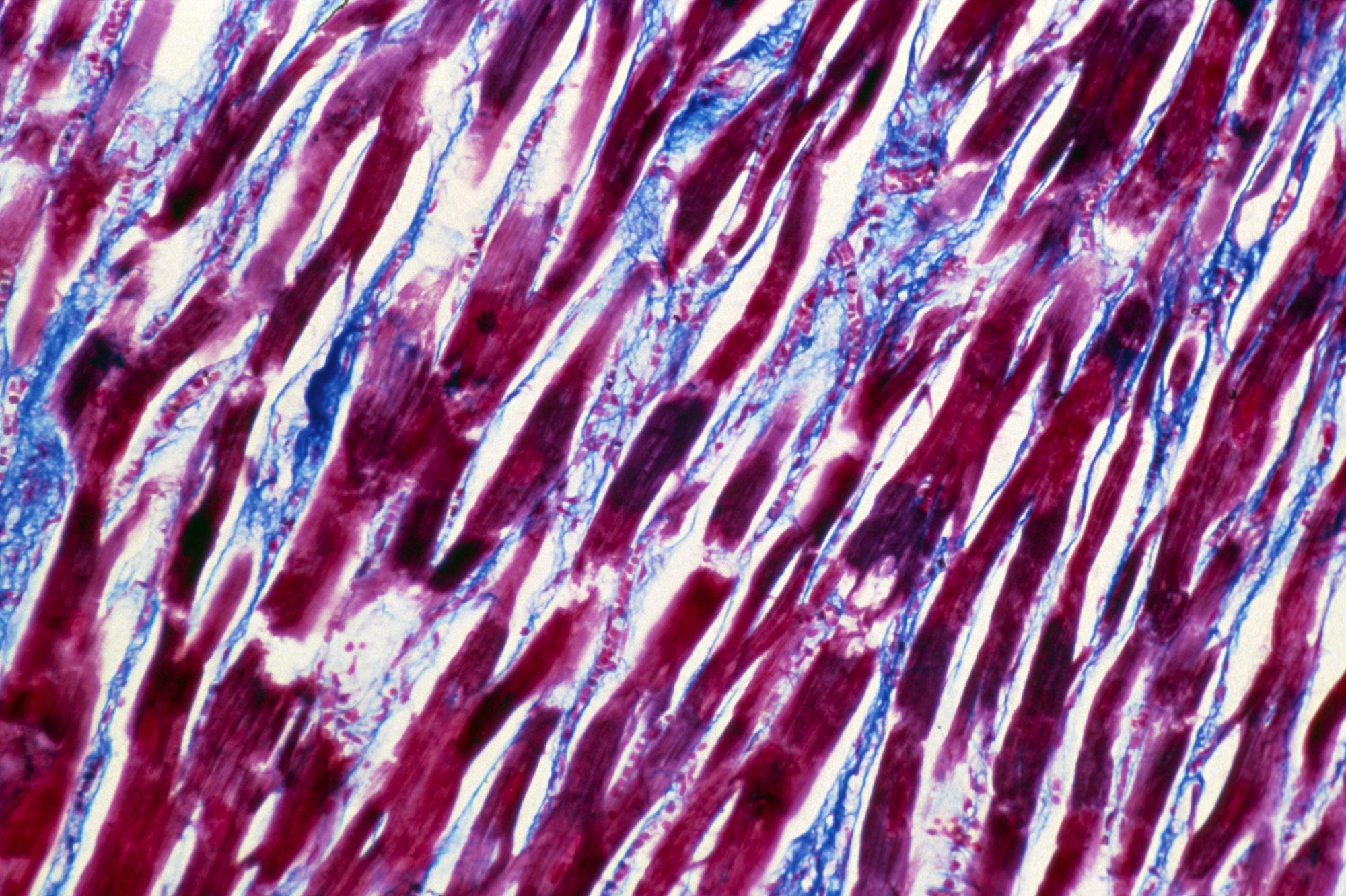 M of inflamed cardiac muscle (myocarditis)
