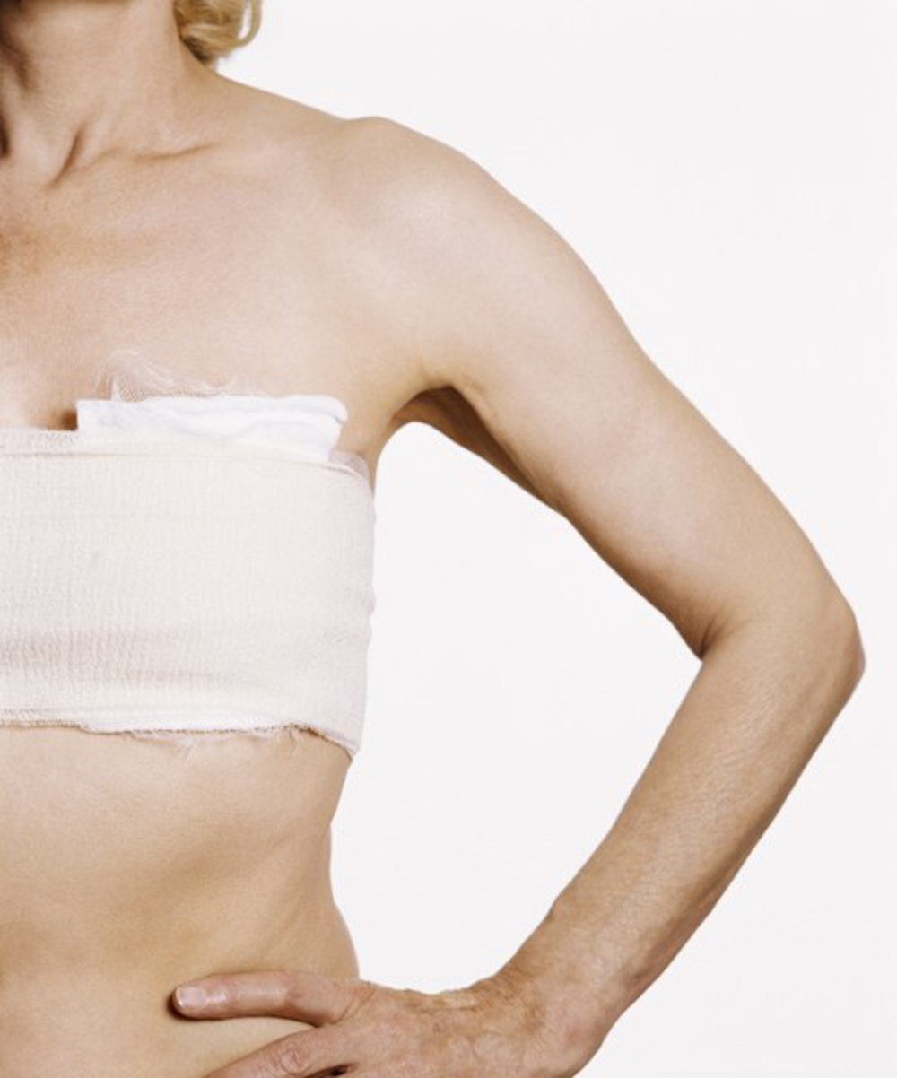 mastectomy-bandage