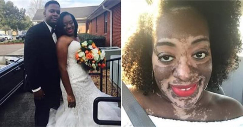 vitiligo-wedding-facebook