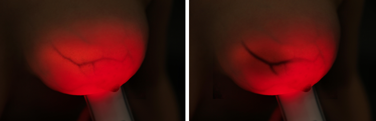 Pink Luminous Breast results