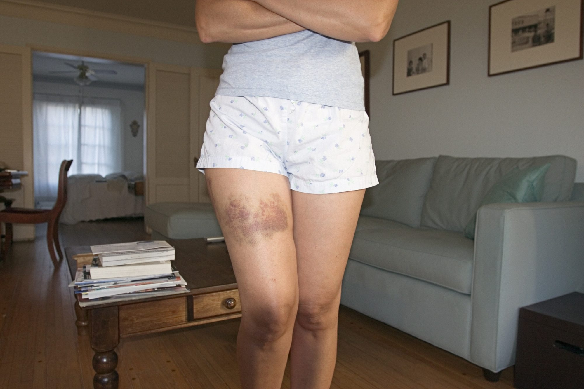 Women with bruise on thigh