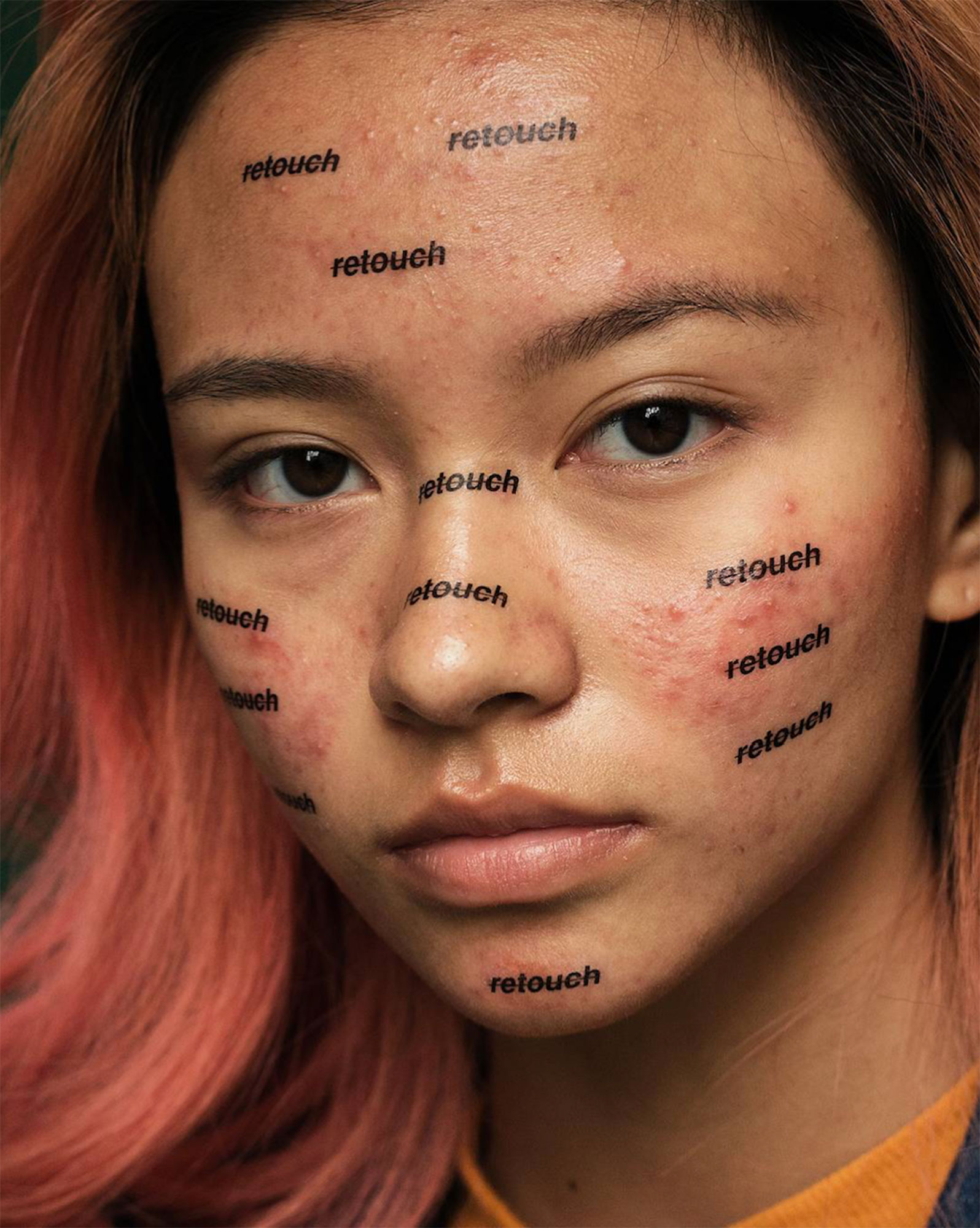 Photographer Creates Brave Portrait Series to Normalize Acne After Years of Photoshopping Himself