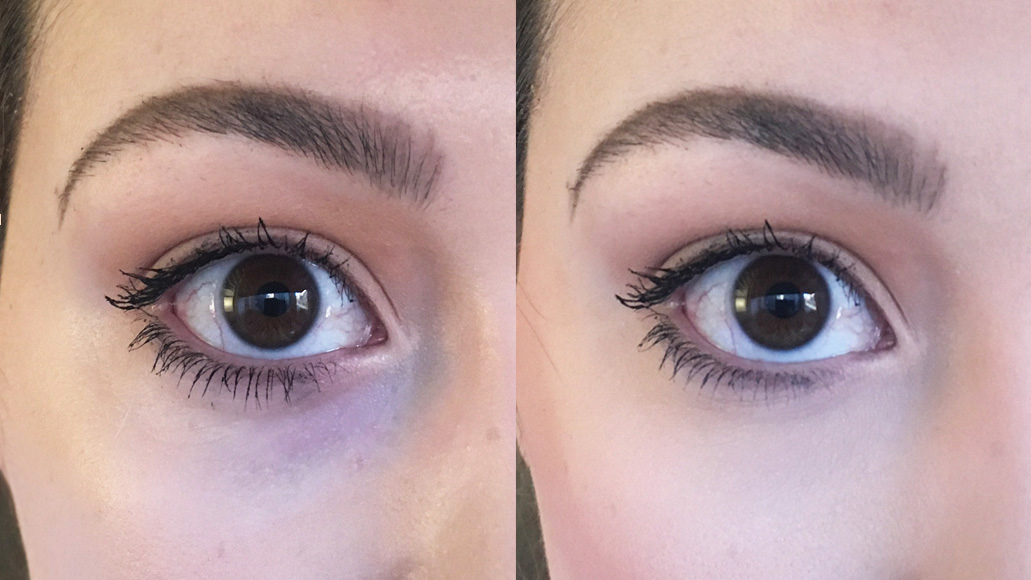 kim-k-dark-circles-before-after-trial