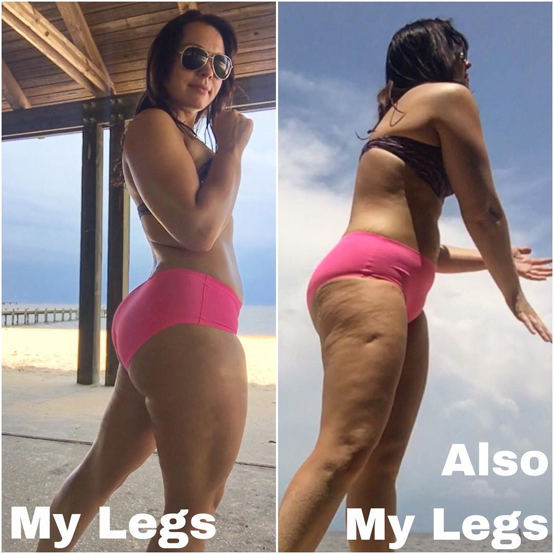 This Woman Showed How Lighting Can Completely Change The Look Of Cellulite Health Com