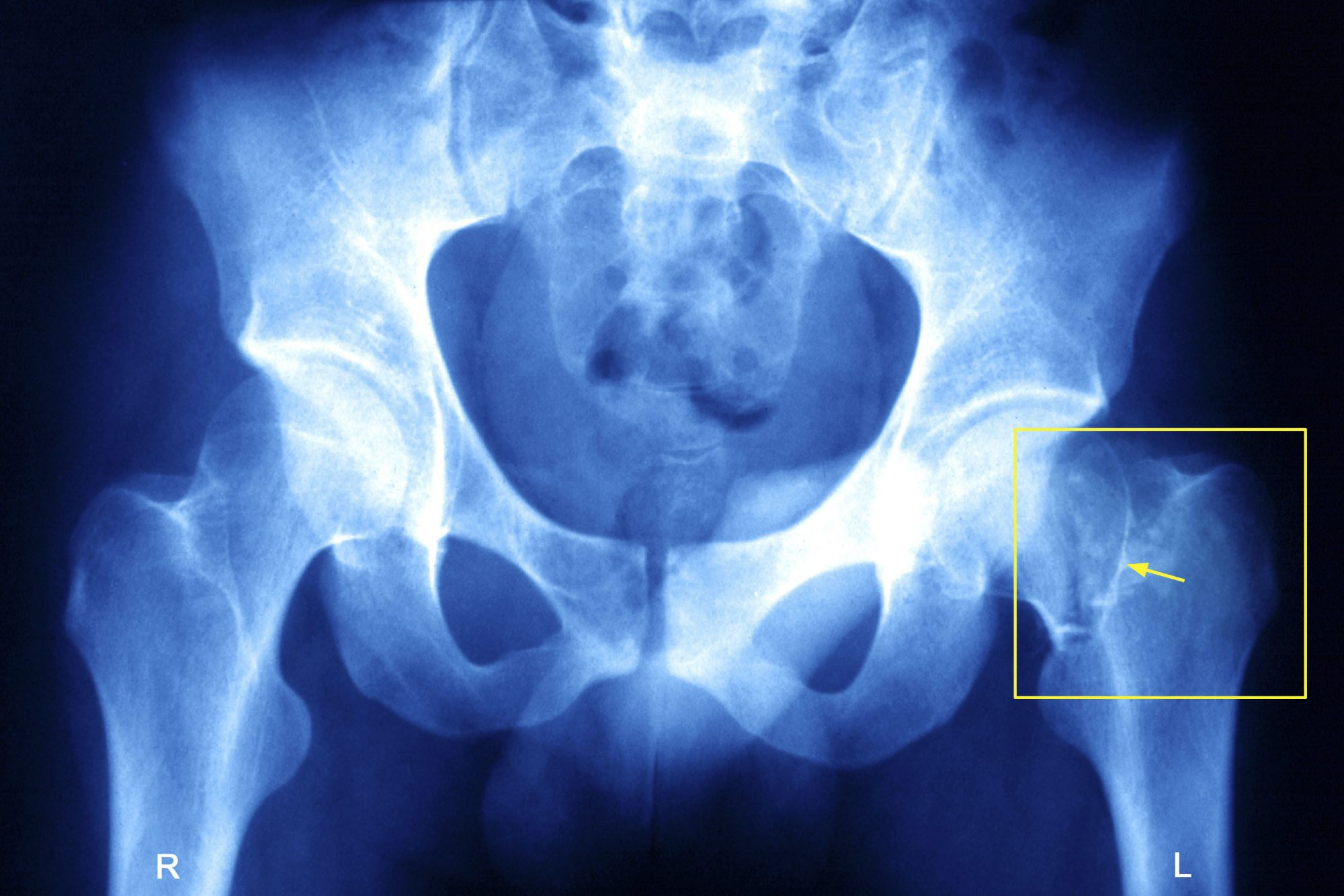 Fractured hip xray osteoporosis bone health