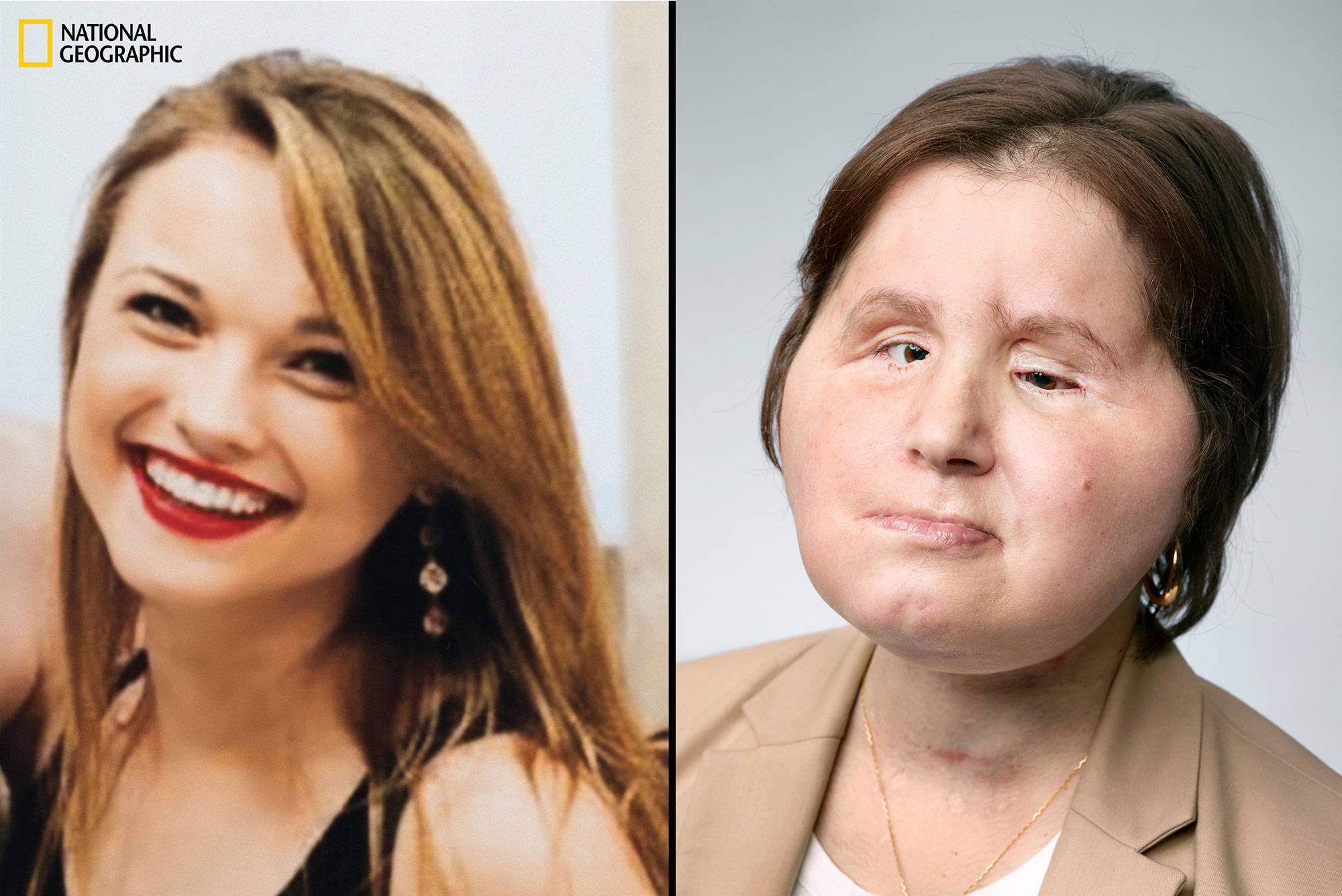 Youngest Face Transplant Recipient in America Shares Her Story: 'I Want to Help Other People'