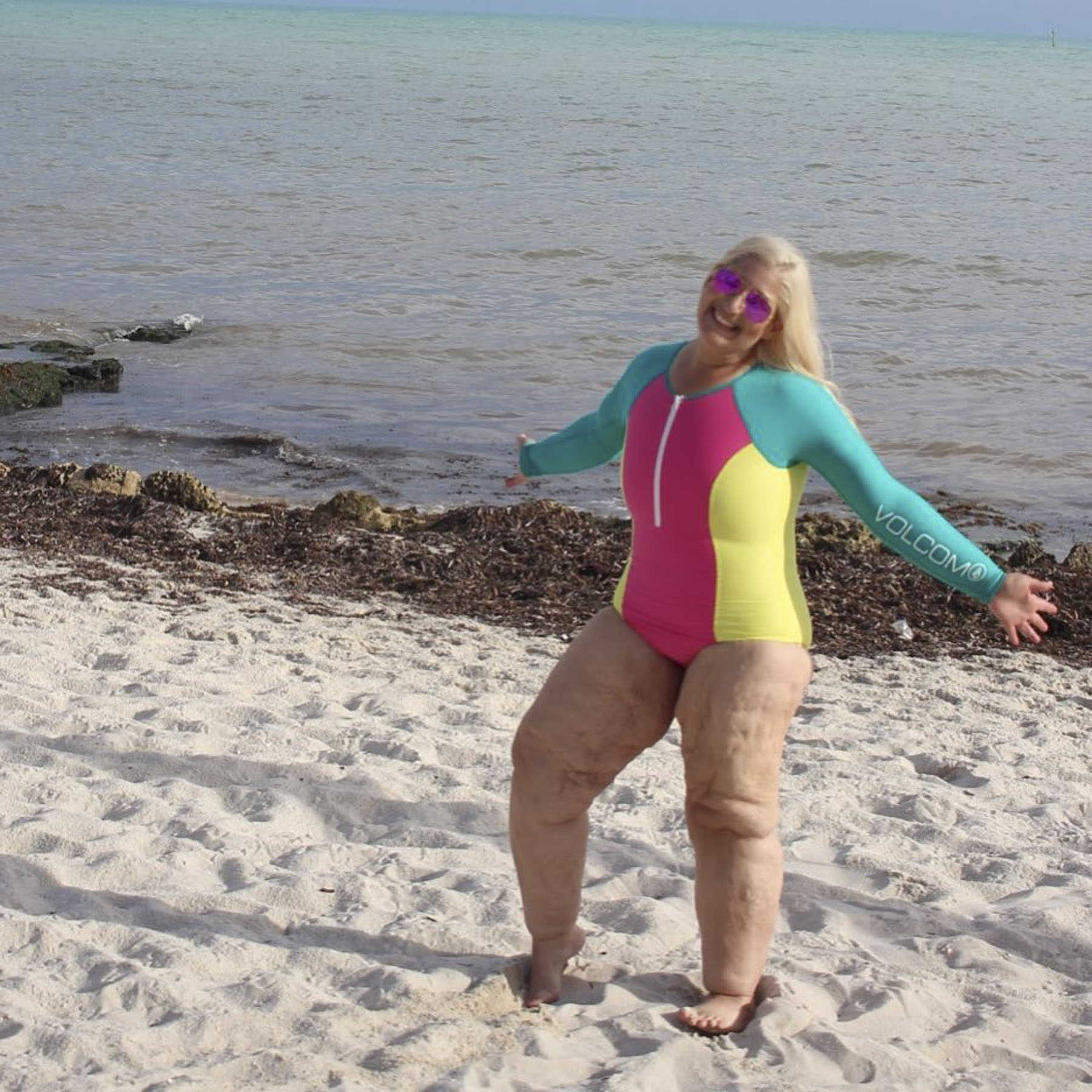 Woman Who Lost 350 Lbs. Body Shamed on the Beach Again — Even After Skin Removal Surgery