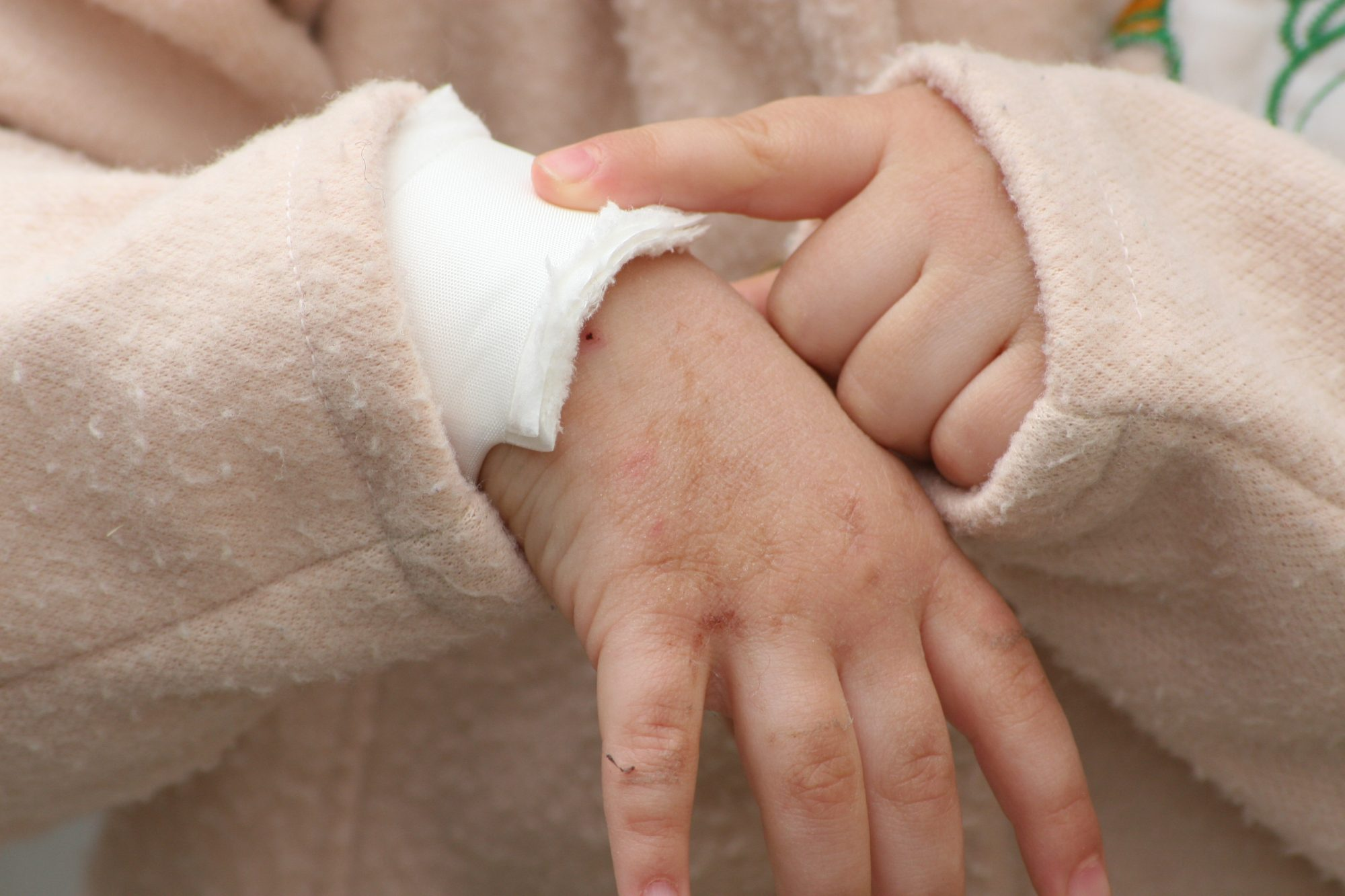 toddler-injured-hand