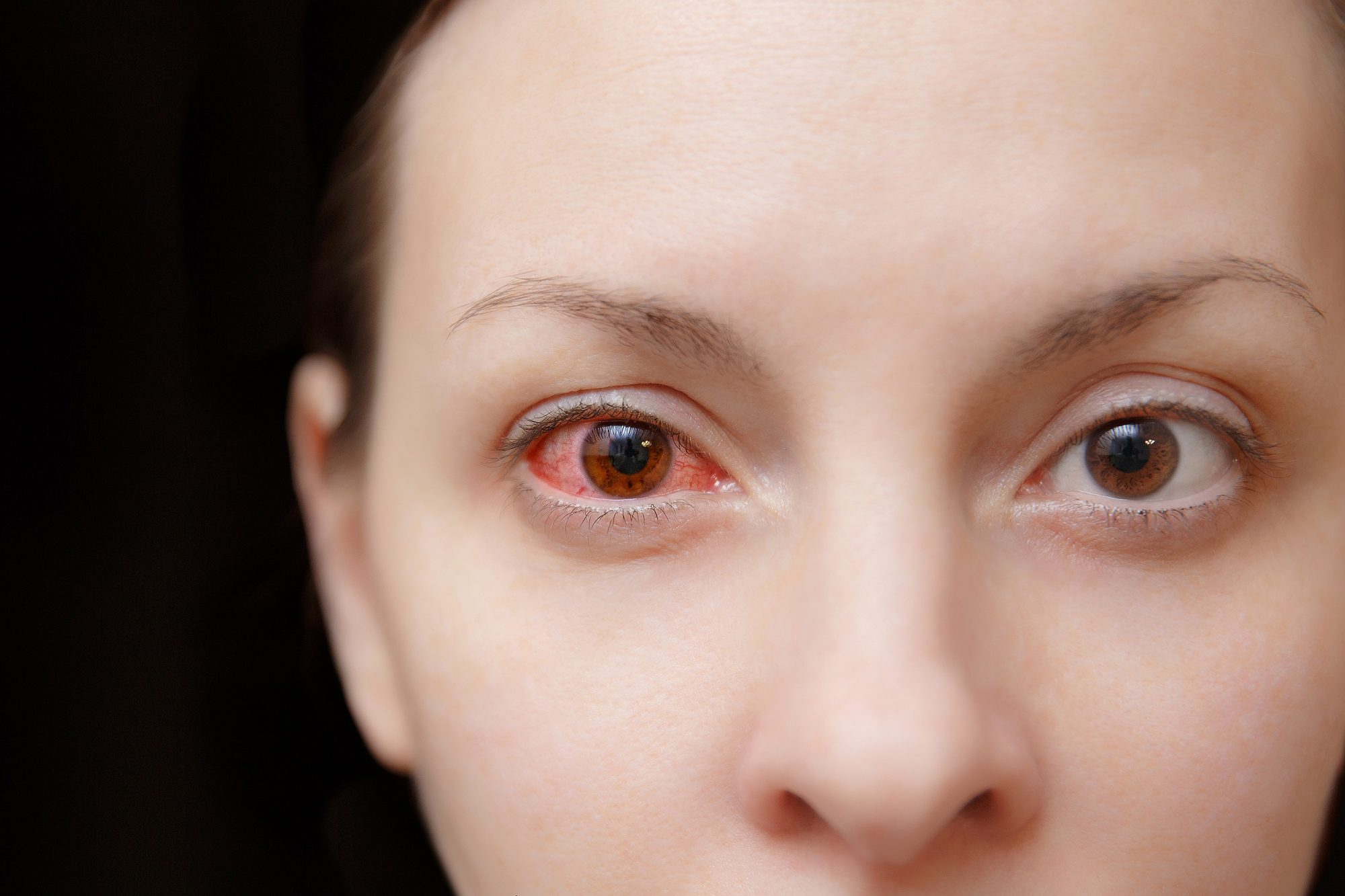 Mom Is Almost Blinded by a Parasite from Swimming in Her Contact Lenses: 'It was So Horrific'