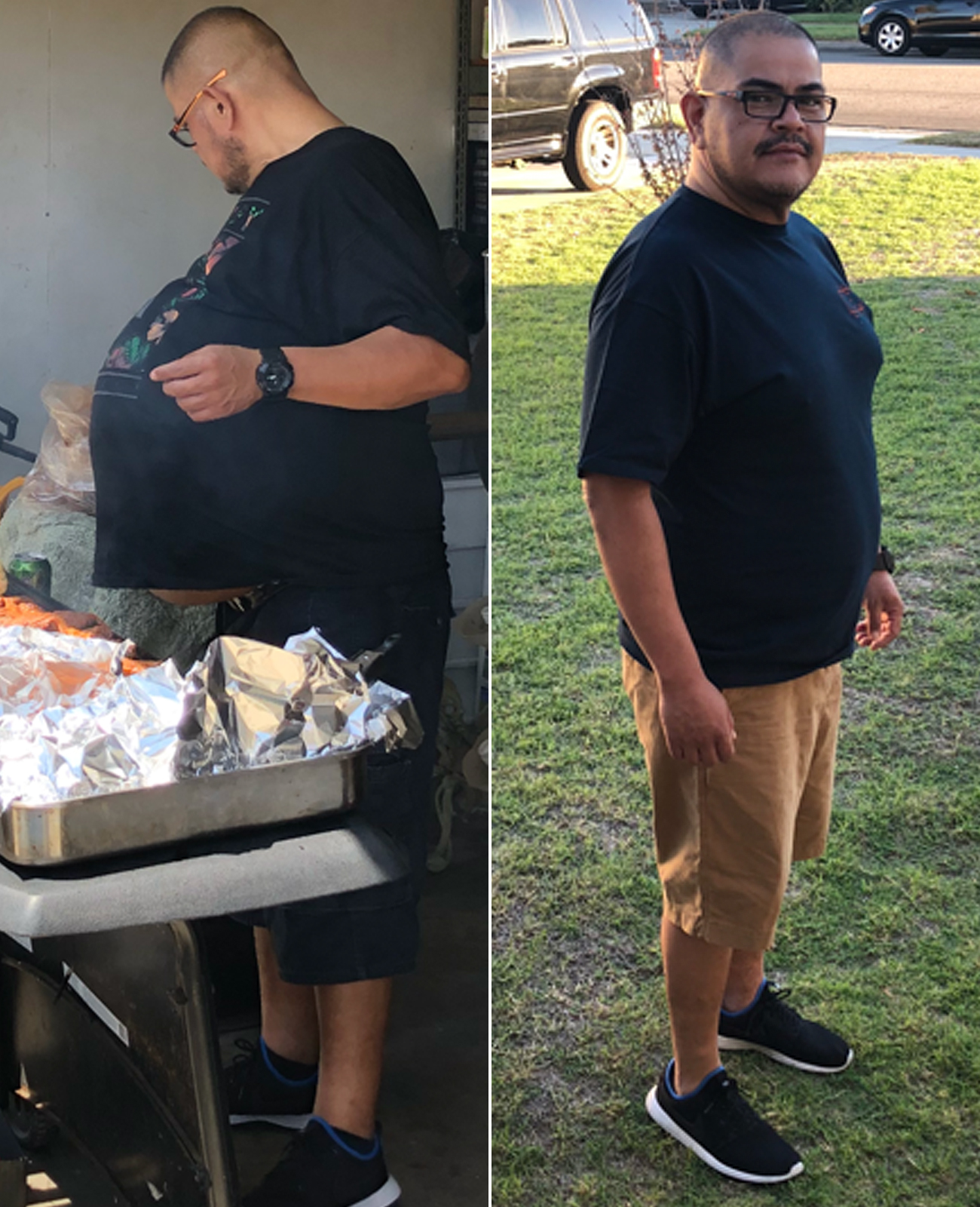 Man's 'Beer Belly' Turns Out to Be a 77-Lb. Tumor: 'I Thought I Was Just Fat'