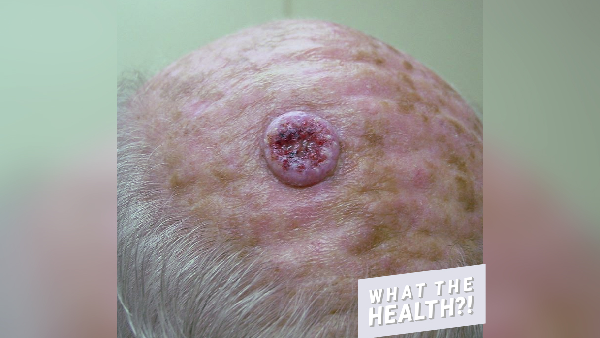 Dr Pimple Popper S Photo Of Bloody Hole In Head From Skin Cancer Health Com