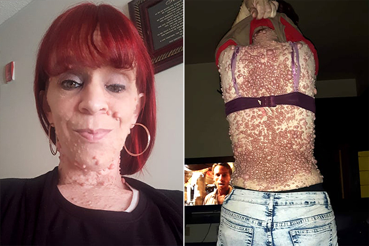 Mother With Thousands of Tumors Suffers From Rare Skin Condition