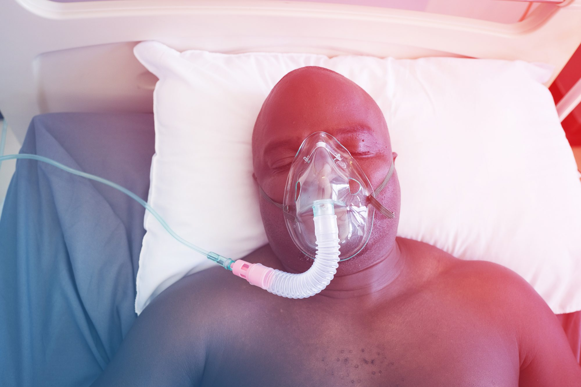 coronavirus-patient , coronavirus, covid-19, Patient lies in hospital bed on a respirator