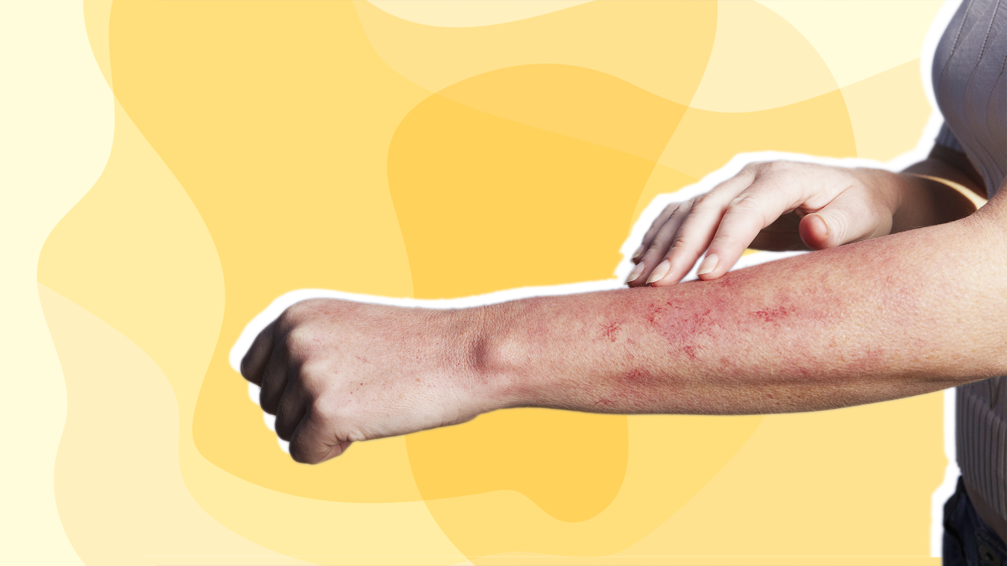 Hand feeling rash on arm. stress-rash