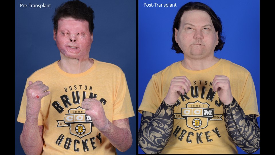Joe DiMeo face hands transplant
