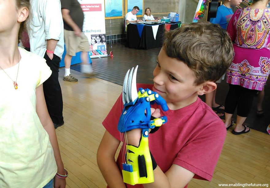 3d-printed-super-hero-prosthetic-limbs-enabling-the-future-1