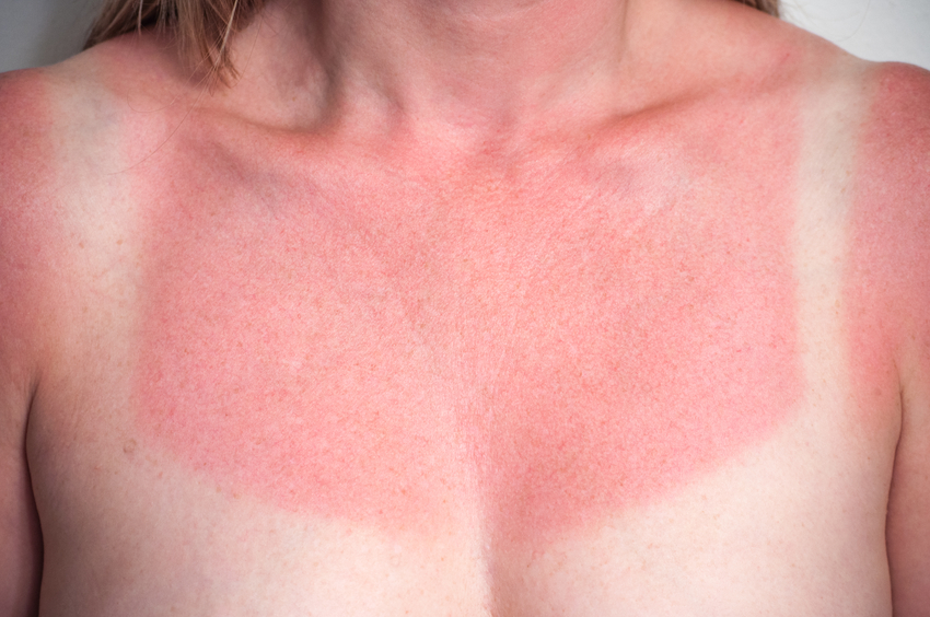 Closeup image of a white and red sunburned female chest
