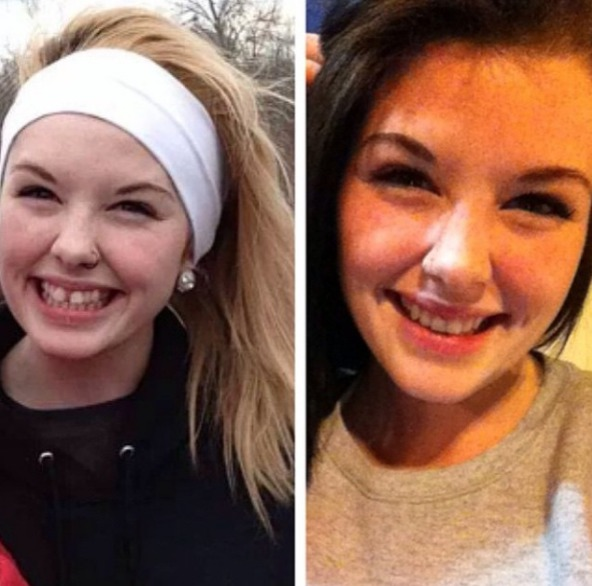 Picture of Invisalign Before and After Photo