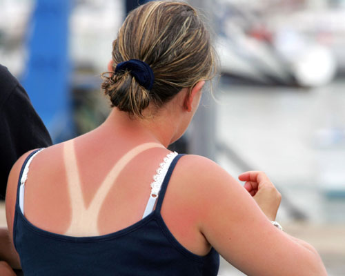 sunburned-getty-images