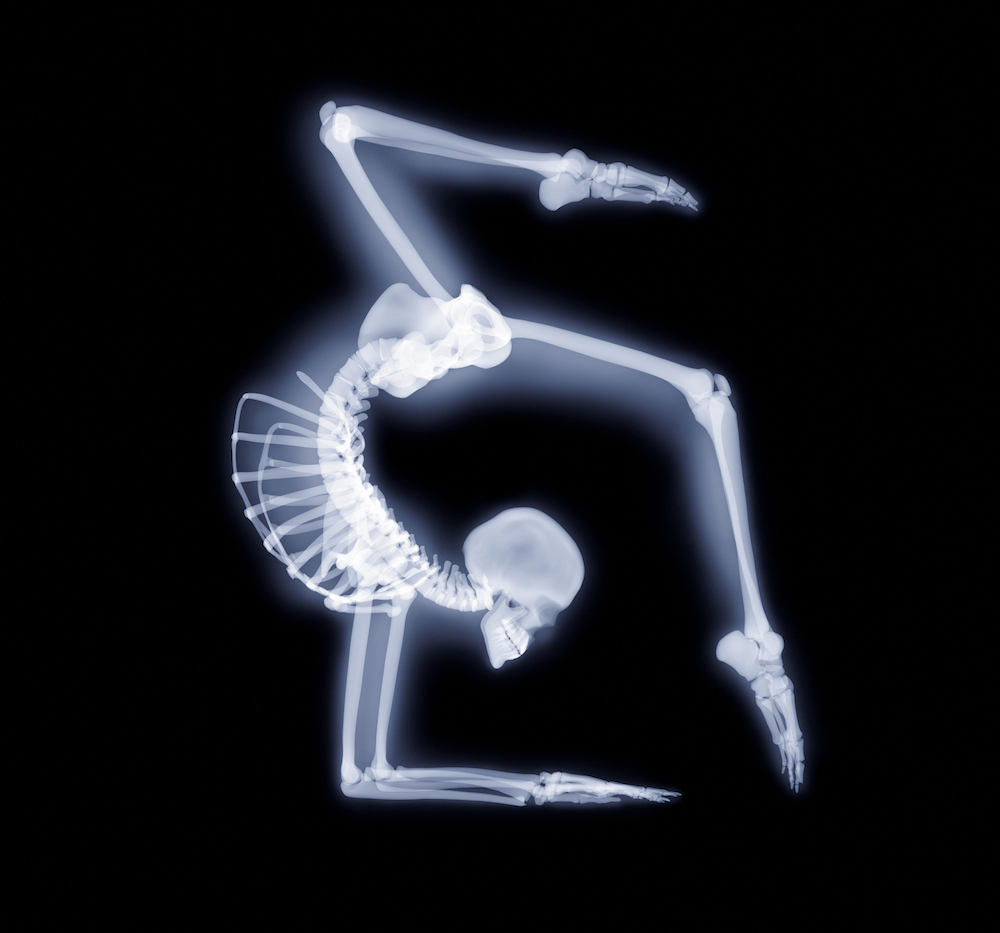 Elbow stand, X-ray artwork