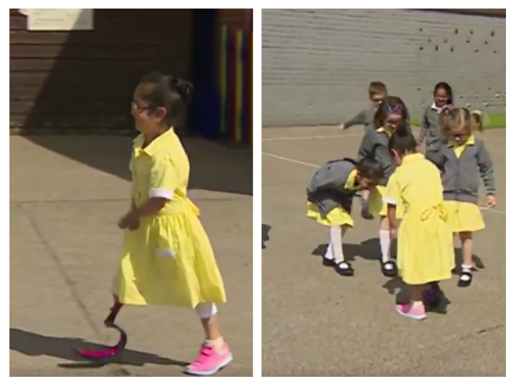 little girl shows new pink prosthetic leg to friends