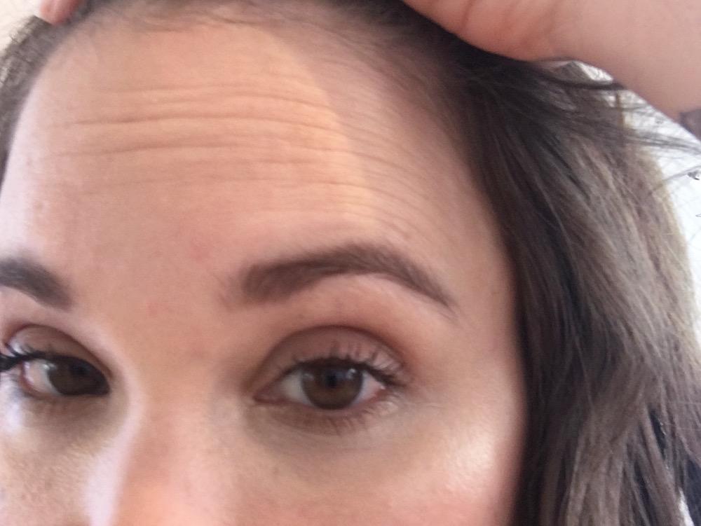 Pre-Fillerina-forehead-closeup1.jpg
