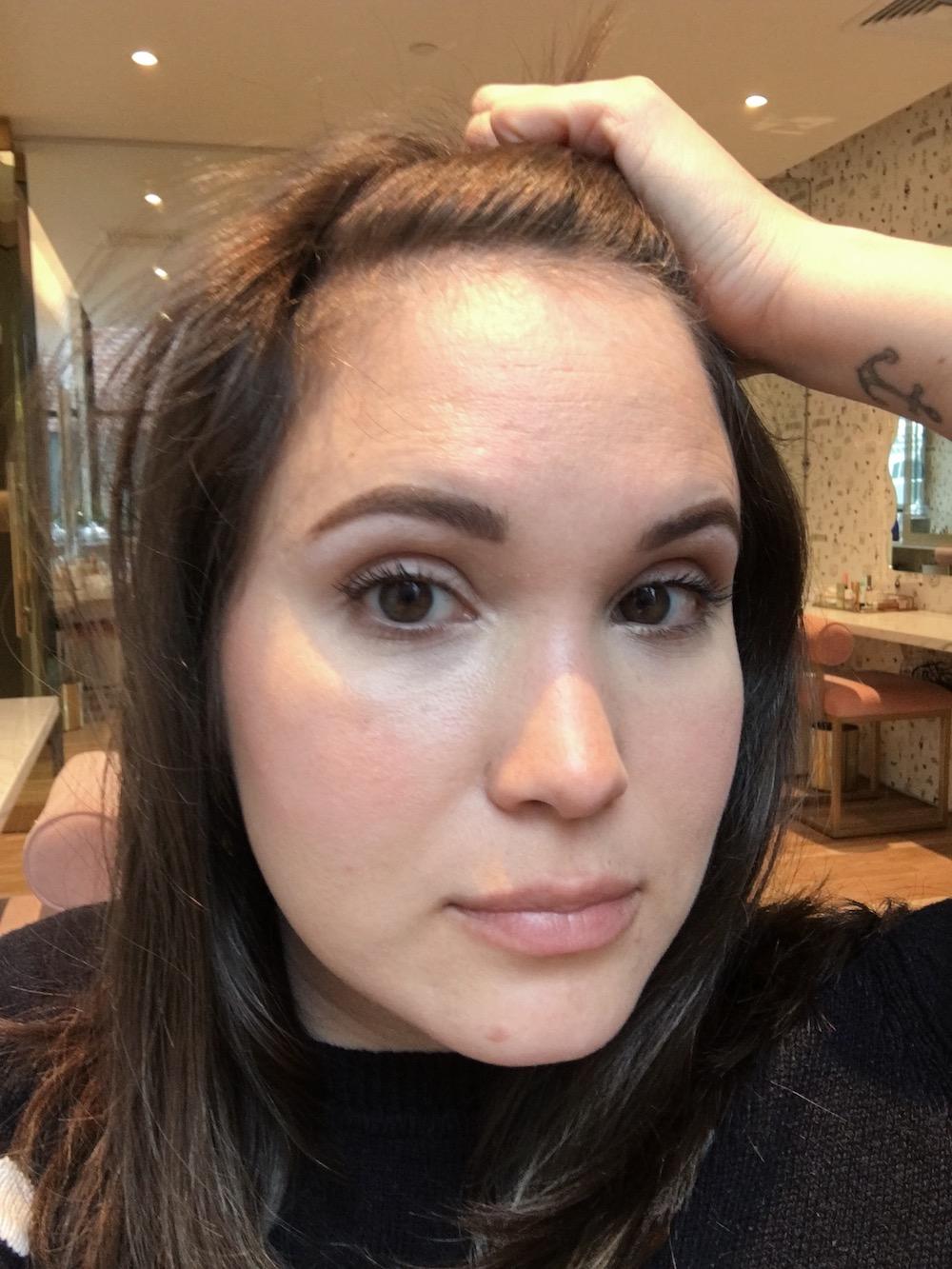 forehead-more-2.jpg
