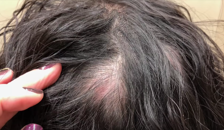 Image of woman's pilar cyst