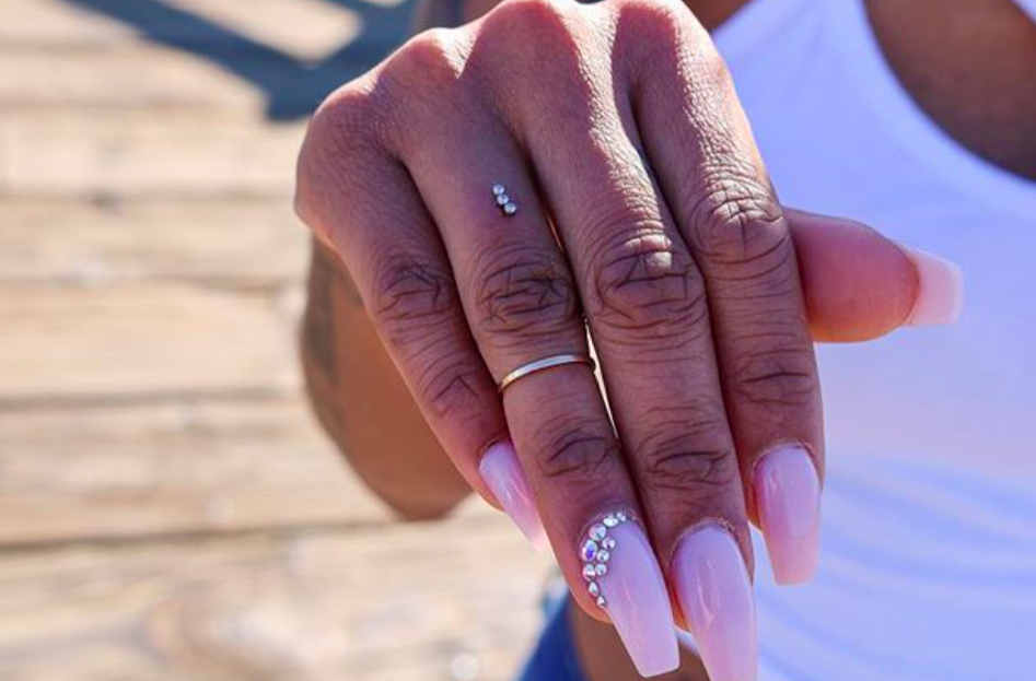 dermal implant engagement ring