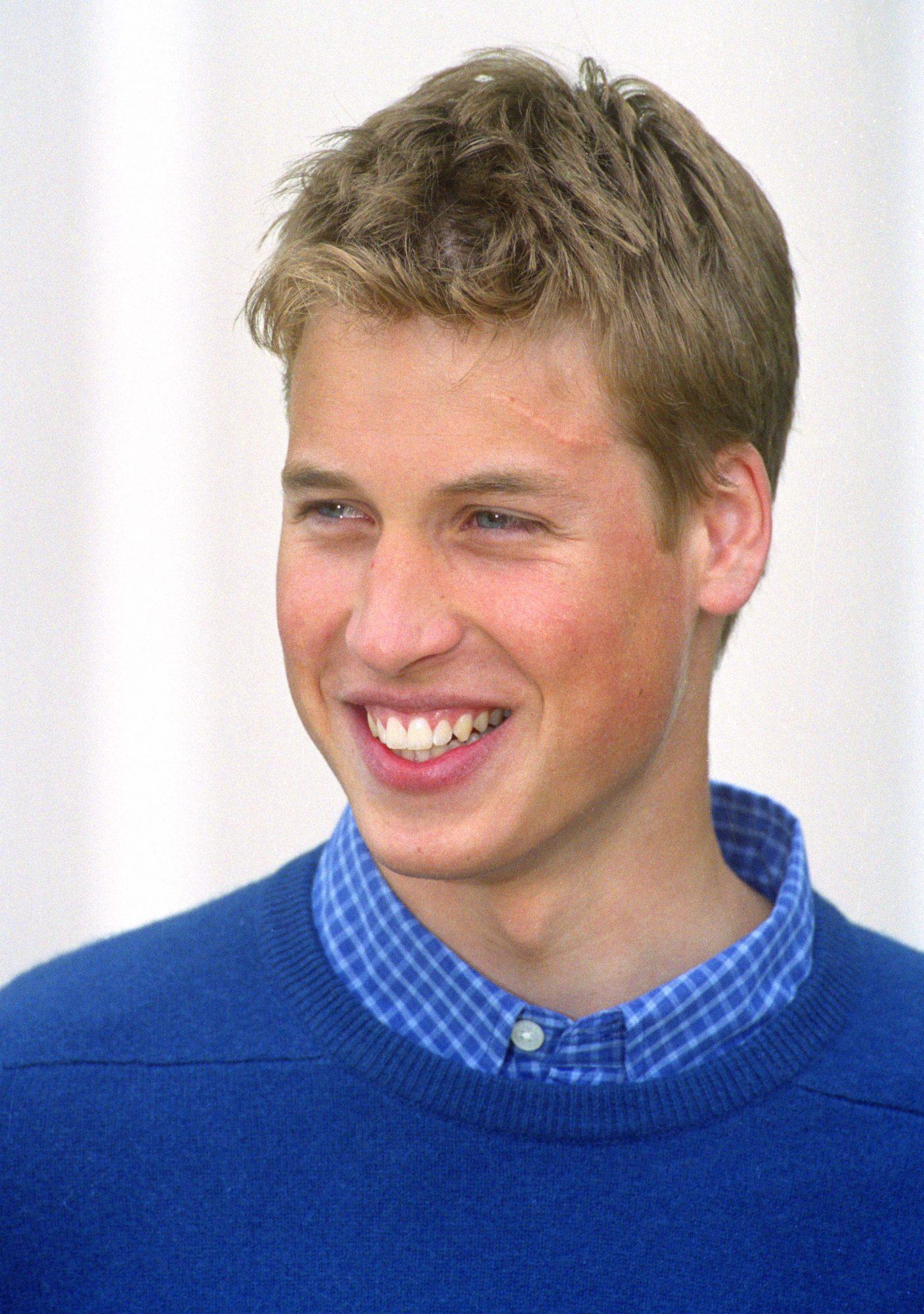 Prince-William-scar.jpg