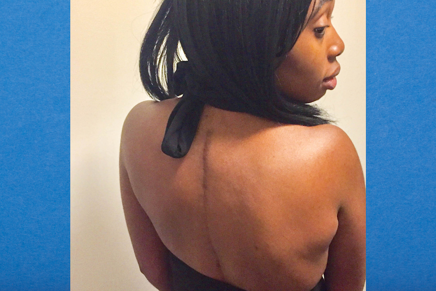 Author revealing her surgical scar
