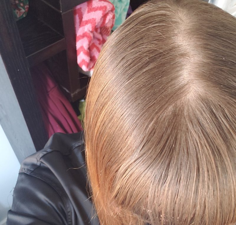 scalp-e1547409994783.jpg