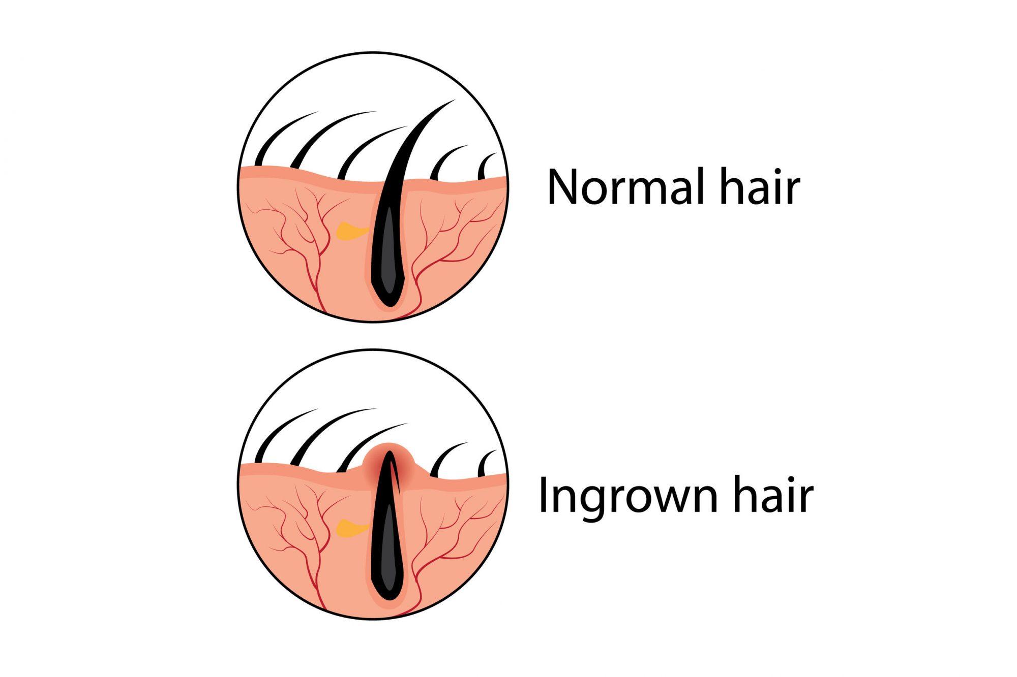 ingrown-hair..jpg
