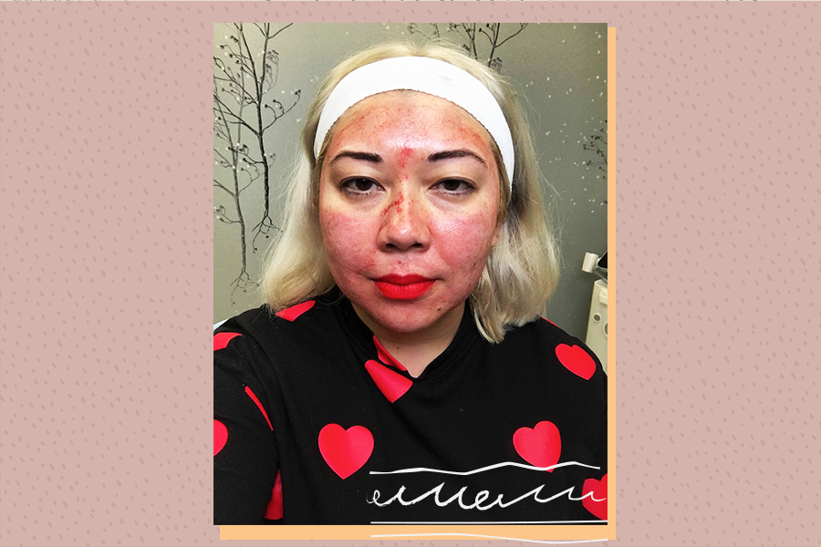 vampire facial before and after photos, what is a vampire facial