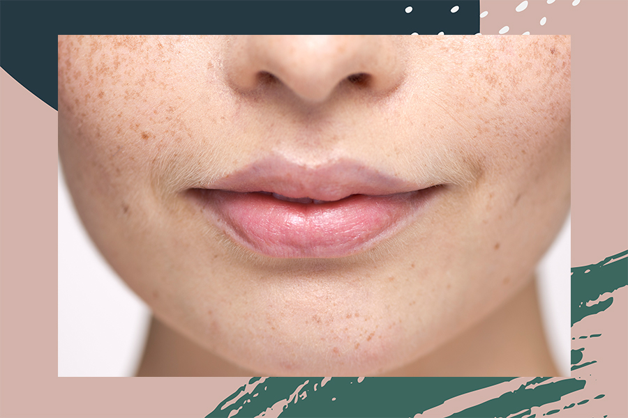 upper lip hair removal at home