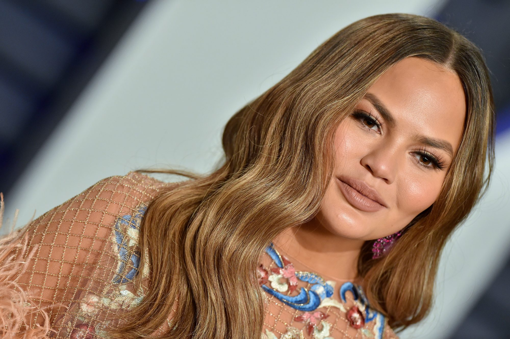 chrissy teigen, breast implant removal surgery