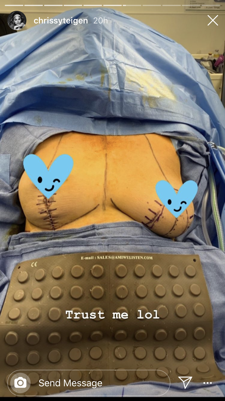 chrissy teigen instagram photo of breast implant removal surgery