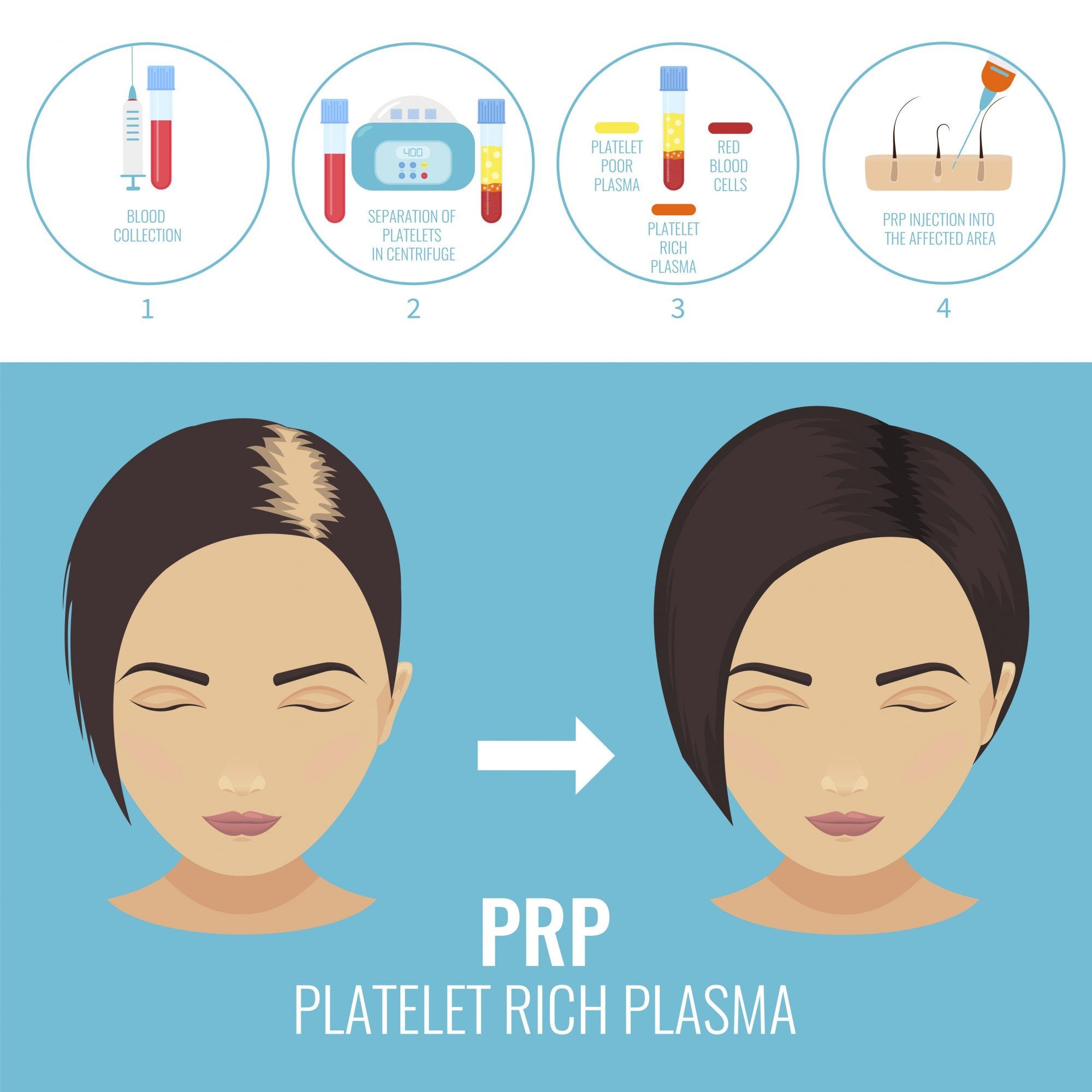 prp treatment hair loss